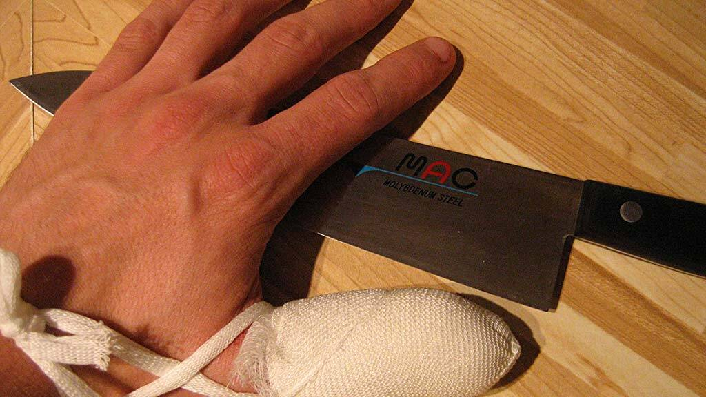 knife injury in the workplace